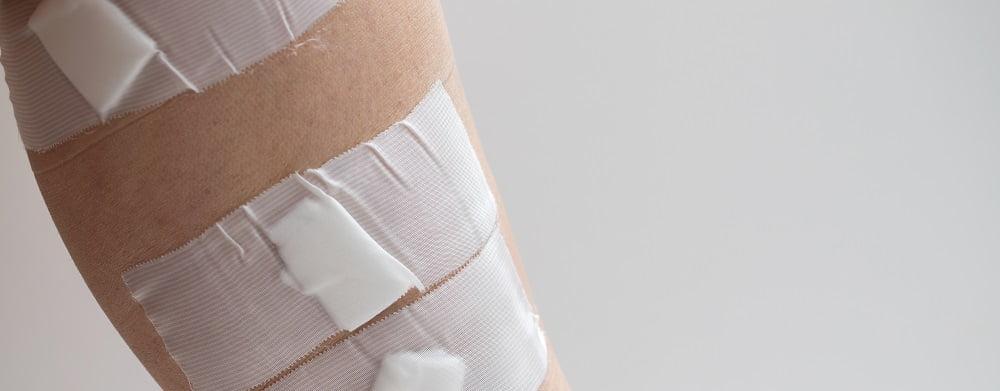 leczenie żylaków nóg